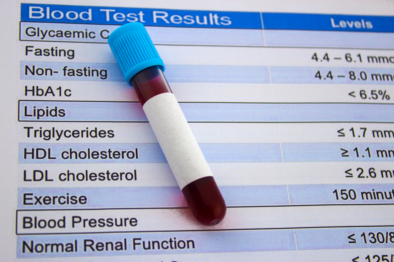 cholesterol test image