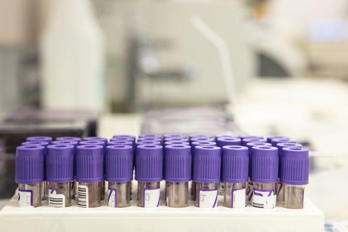 purple top tubes